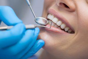 Le fil dentaire
